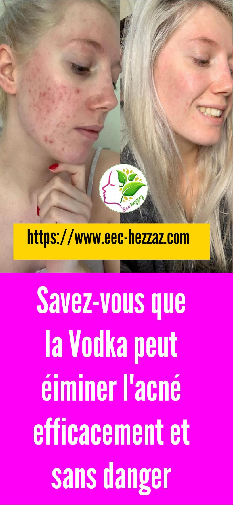 Savez-vous que la Vodka peut éiminer l'acné efficacement et sans danger