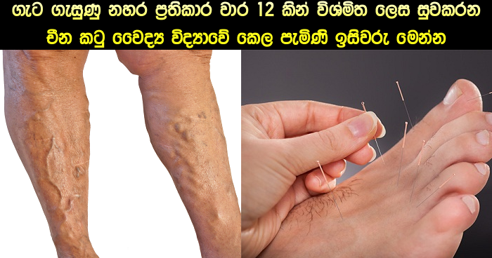 Acupuncture For Varicose Veins | Ada Dawasa