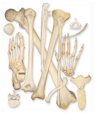 osteomalazi
