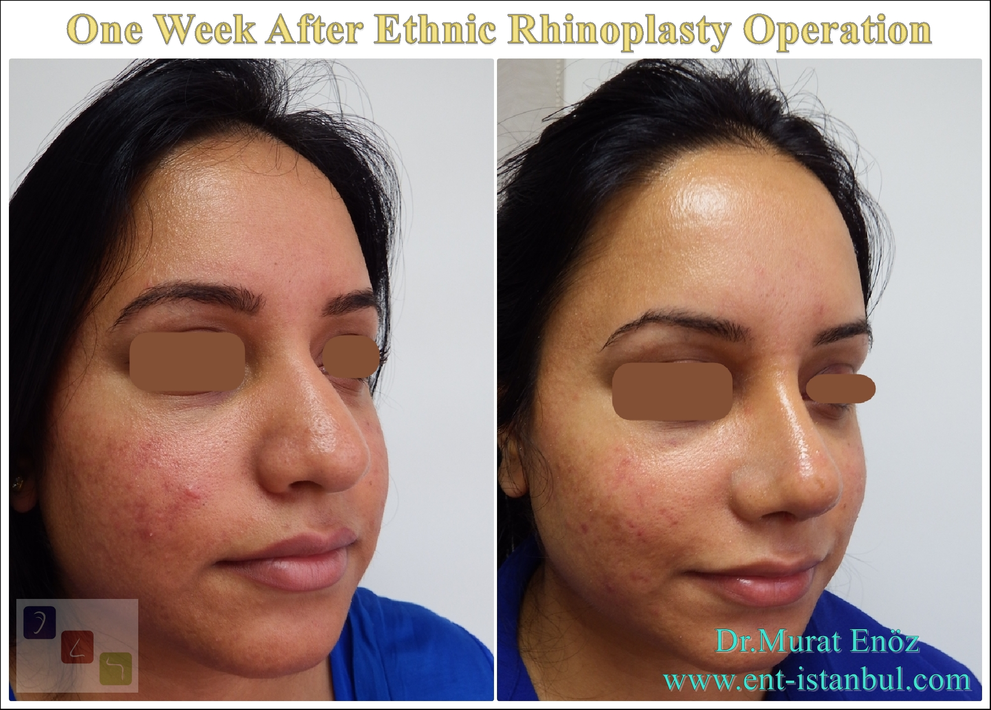Rhinoplasty Healing Properties By Week And Month