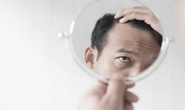 أسباب تساقط الشعر عند الرجال وعلاجه