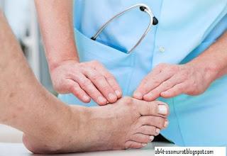 Manfaat Paprika Untuk Penyakit Asam Urat