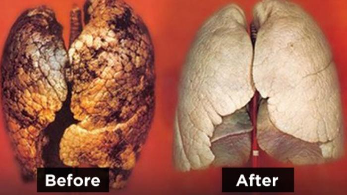 Obat Pembersih Paru Paru Akibat Asap Rokok Yang Dijual Di Apotik