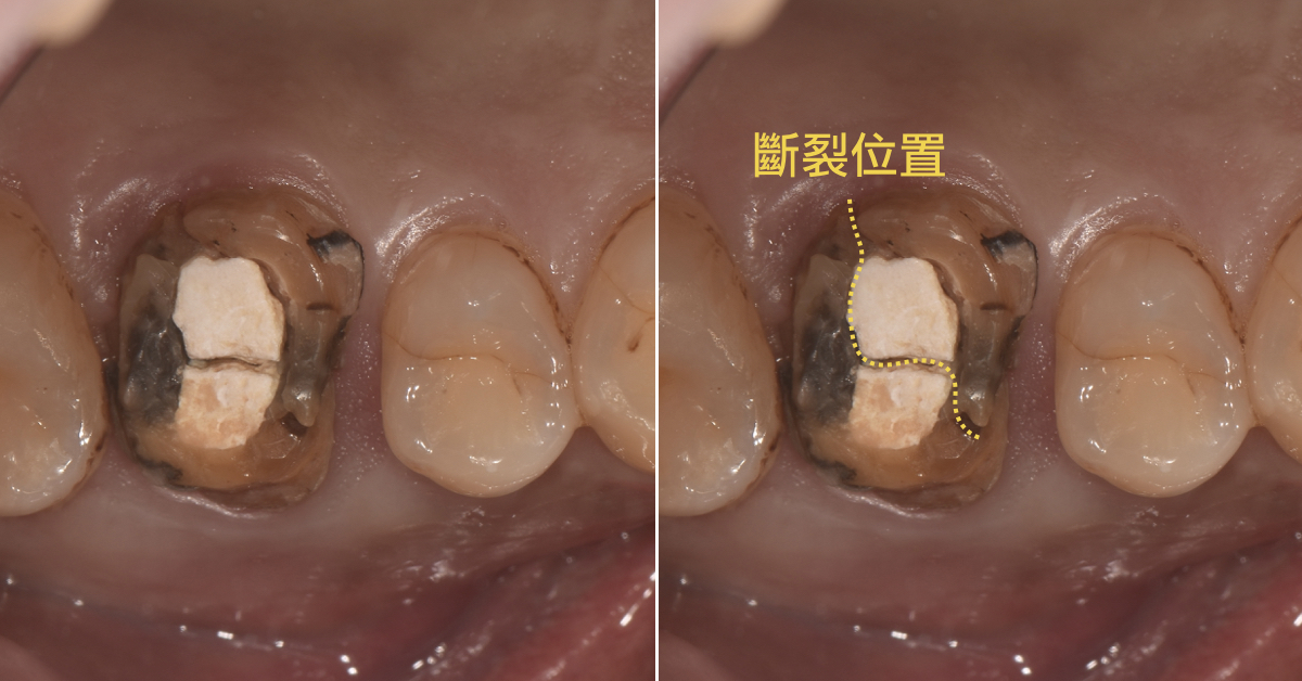 抽完神經後為什麼要做牙套? - 壹八八美學牙醫診所