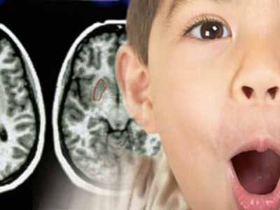 Resultado de imagen de TRASTORNOS NEUROLÓGICOS DE LA NIÑEZ