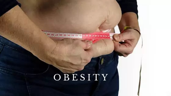 Individual Health Insurance That Covers Bariatric Surgery