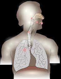 Lung cancer in Arabic - سرطان الرئة