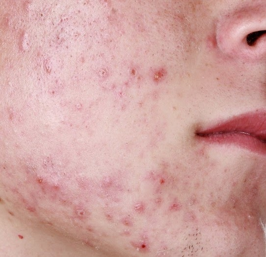 How To Treat Pustules Acne Naturally