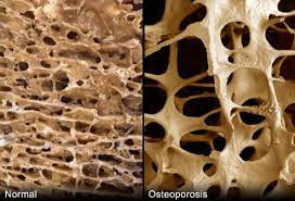 Tulang Orang Normal VS Osteoporosis