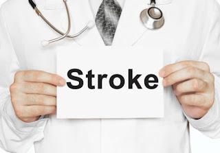 Obat stroke ringan sebelah kiri