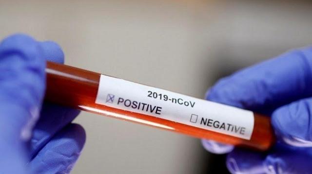 معطيات جديدة عن فيروس كورونا و درجة الحرارة التي ينتعش فيها !