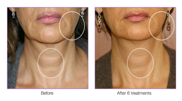 Bellezza aesthetics Before and After treatment Fracell Skin Reborn