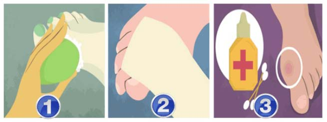 kunci jawaban buku siswa tema 5 kelas 4 halaman 92 cedera luka