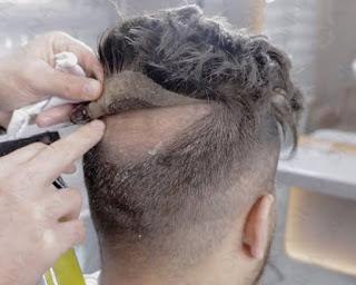 protez saç ünlüleri