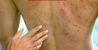 Image Penyebab gatal dan betol di seluruh badan