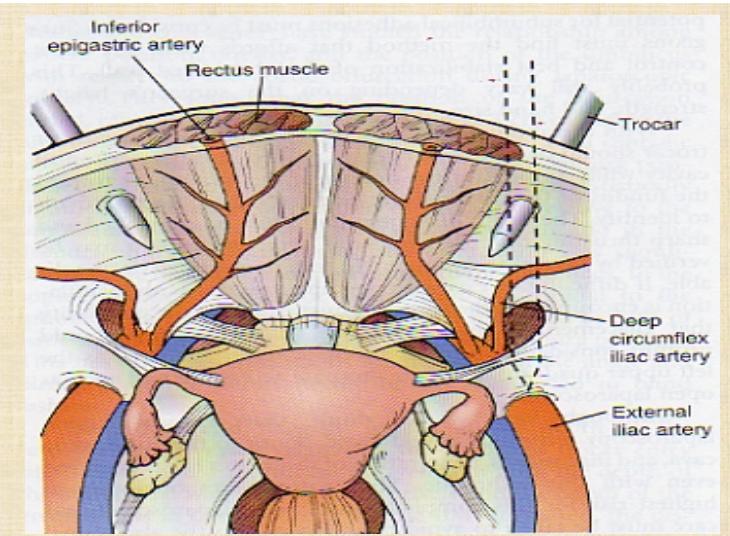 Cirugia Minima Invasiva Ginecologica: Anatomia pélvica laparoscopica