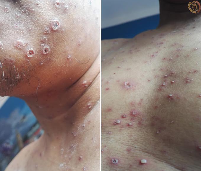 Tubuh Dijangkiti Demam Campak atau Chickenpox