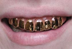 anak dengan gigi emas
