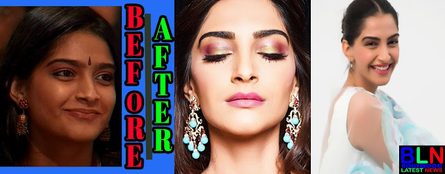 SONAM KAPOOR Bollywood Actresses Before and After Plastic Surgery