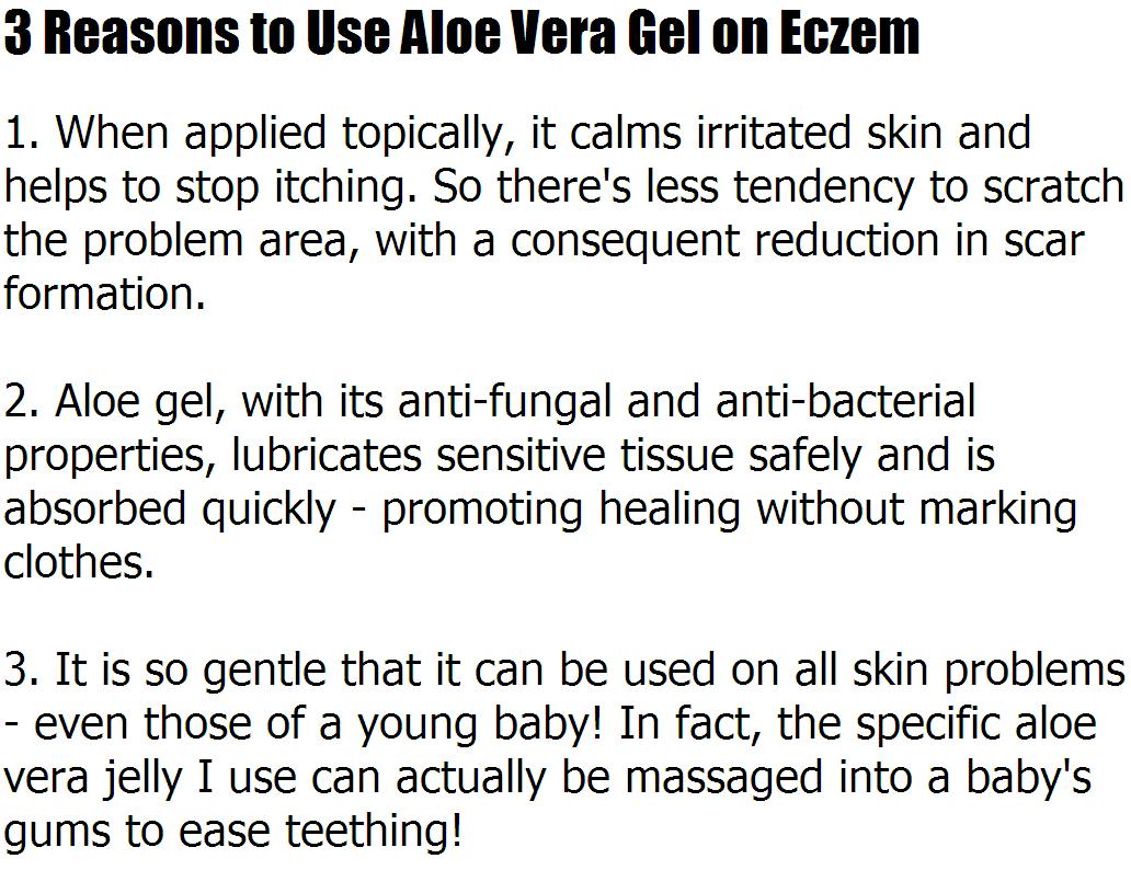 Aloe Vera For Eczema – 3 Reasons to Use Aloe Vera Gel on