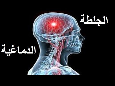 العوامل المفسرة لحدوث الجلطة الدماغية وكيف يتم علاجها
