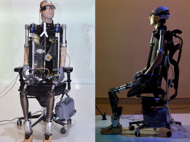 World's First Bionic Man Worth $1
