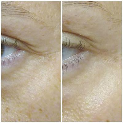 Как действуют пептиды на зону вокруг глаз, цвет лица и отеки