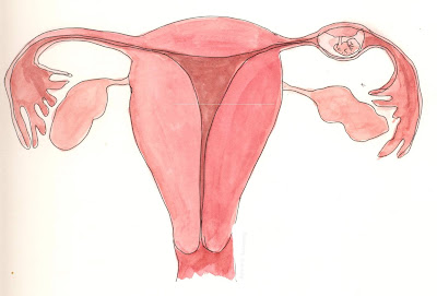 Treatment for Blocked Fallopian Tubes Naturally