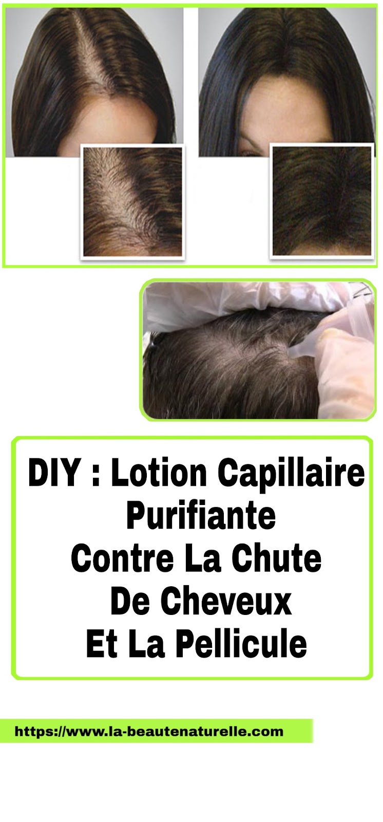 DIY : Lotion Capillaire Purifiante Contre La Chute De Cheveux Et La Pellicule
