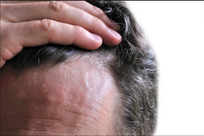 DANDRUFF, HAIR LOSS, HAIR FALL