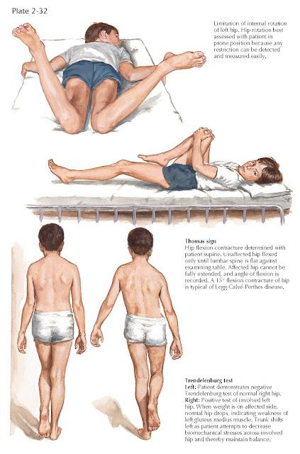 LEGG-CALVÉ-PERTHES DISEASE: PHYSICAL EXAMINATION