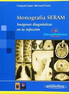 Monografia SERAM Imagenes Diagnosticas En La Infeccion - Franquet Casas