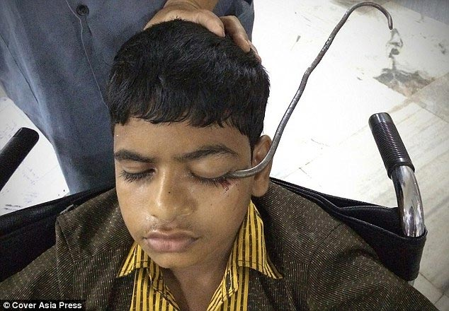 Graphic: Doctors remove large hook from boy's eye in India