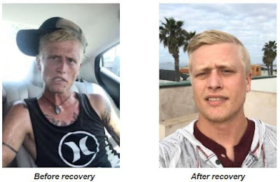 heroin intoxication symptoms and behavior