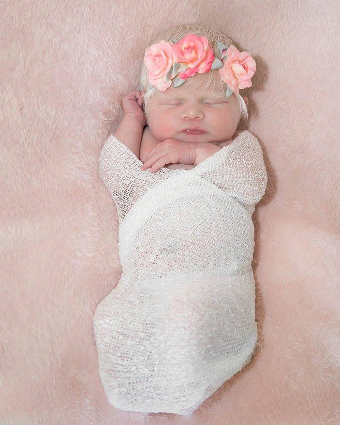 Parents Shocked After Giving Birth To A Blond Baby Girl With Light Skin