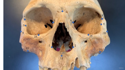 The researchers used 16 facial landmarks to analyze the skull