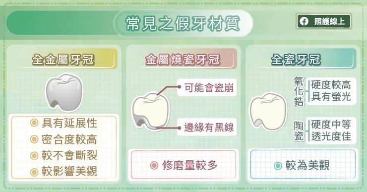 常見的假牙材質