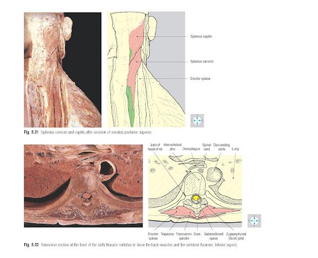Splenius cervicis and capitis after excision of serratus posterior superior.