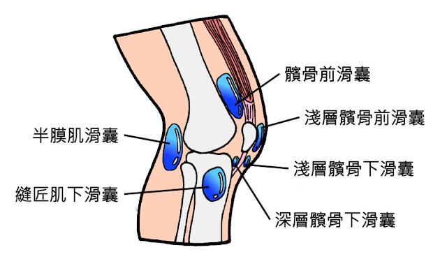 好痛痛 膝蓋 膝關節 滑囊 扮膜肌滑囊 縫匠肌下滑囊 髕骨滑囊