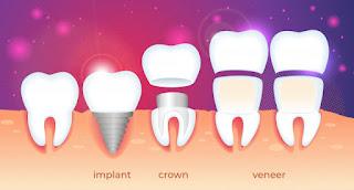 perbedaan implan crown dan veneer gigi