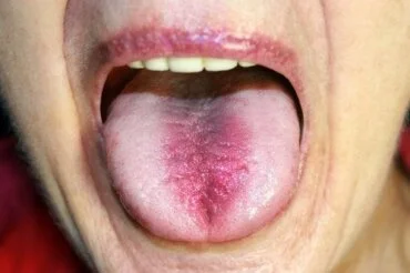 burning mouth syndrome causes