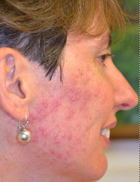virtual grand rounds in dermatology 2 0  rosacea