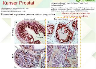 rawatan alternatif kanser melalui resveratrol