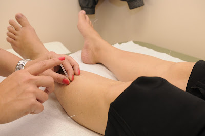 Dry Needling Lower Leg and Foot for Low Back Pain, Sciatica, Shin Splints, Foot Pain, Calf Pain , etc.
