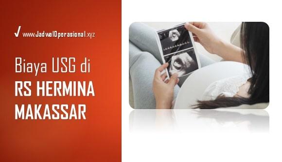 Biaya USG RS Hermina Makassar