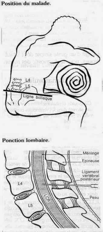 La ponction lombaire (PL) | Récap' IDE