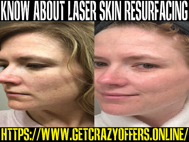 Is Laser skin resurfacing safe?