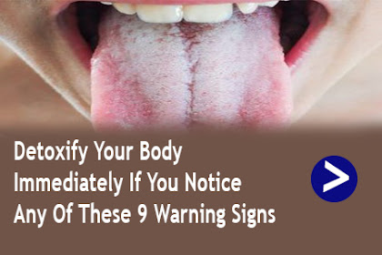 Detoxify Your Body Immediately If You Notice Any Of These 9 Warning Signs