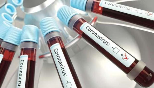 Corona virus cases in Saudi Arabia on 21st November 2020 - Saudi-Expatriates.com