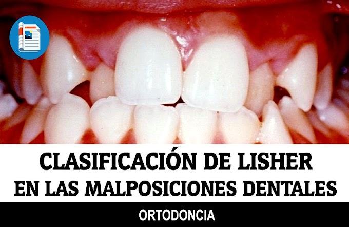 ORTODONCIA: Clasificación de Lisher en las Malposiciones Dentales